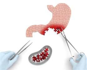 stomach virus symptoms 2014 march april picture 5