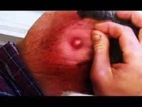 how to pop a cyst with a bottle picture 1