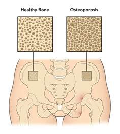 testosterone deficiency and osteoporosis picture 7