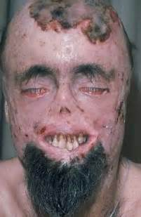 vampire fungus wiki picture 1