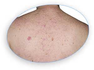 skin red mole picture 5