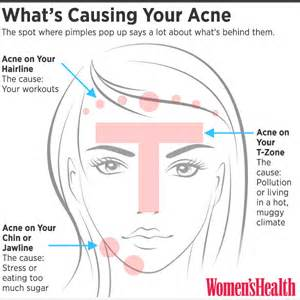what is the cause for acne picture 6