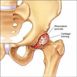 pain the the hip joint picture 15