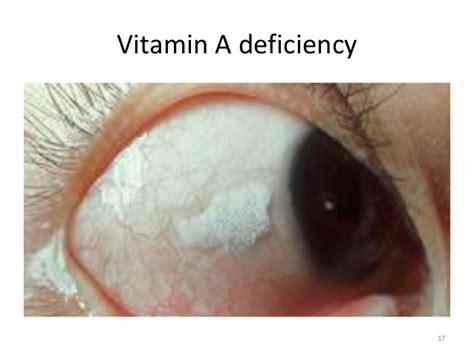 vitamin b5, acne, diarrhea picture 3