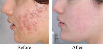 revitol scar cream after i finish micro needling on face picture 10