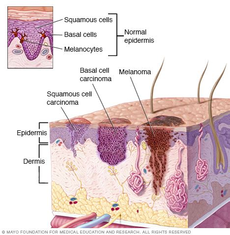 sas cell skin cancer picture 17