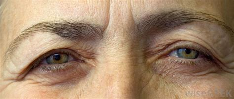 ageing eyes picture 7