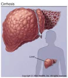 liver with cirrhosis picture 5