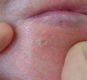 white spots on skin can be dehydraytion picture 10