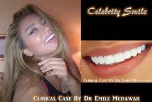hollywood teeth whitening picture 5