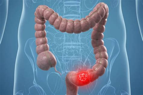 co je tumor colon picture 5