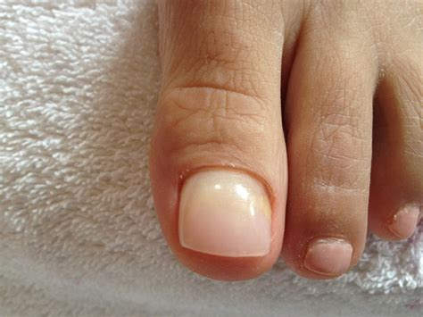 toenail removal surgery fungus picture 3