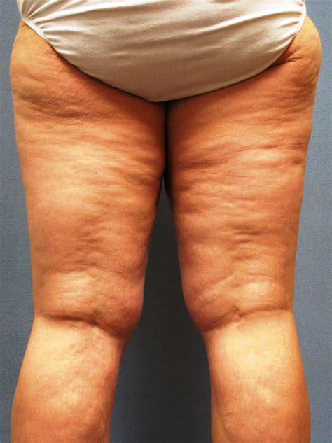get rid of cellulite bodishape cellulite & body picture 4