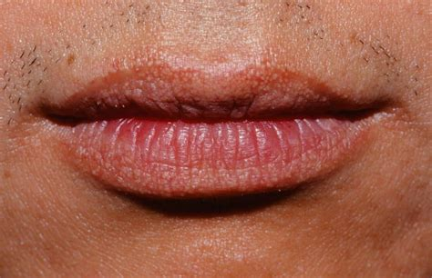 white glands on lips picture 5