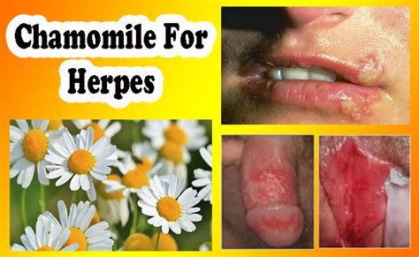 natural herpes cure picture 1