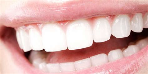 white teeth picture 11