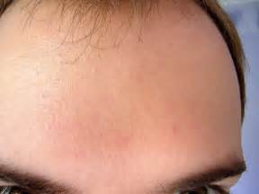 rosacea stage 4 picture 10