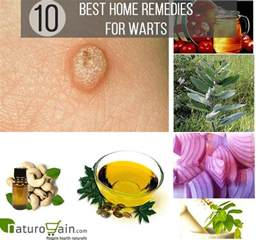 homeopathic remedies warts picture 10
