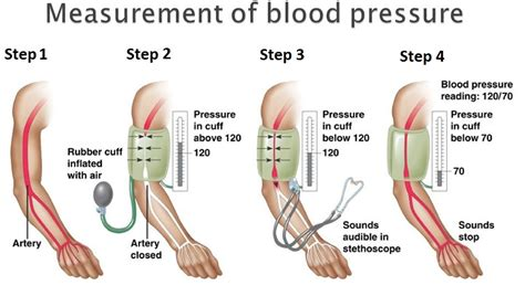 Correct method to take a blood pressure picture 10