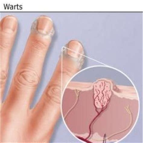 cure for warts picture 7