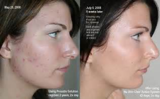 Proactive acne medication picture 13