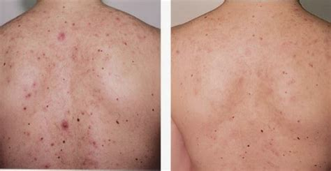 back acne mark picture 9