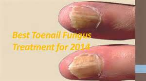 best toe nail fungus cure picture 7