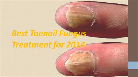 cures for toe nail fungus picture 2
