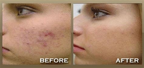 katialis for acne picture 5