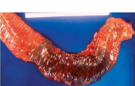 ischemic colon picture 1