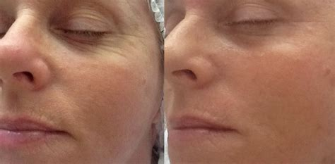 can you have a shower after dermapen treatment picture 2