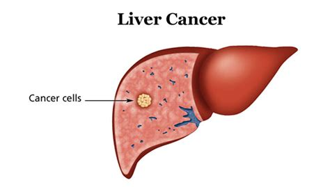 cancer of the liver picture 7