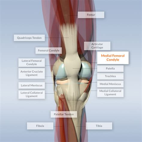 hip pain joint picture 19