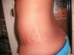 great stretch mark products for african american women picture 5