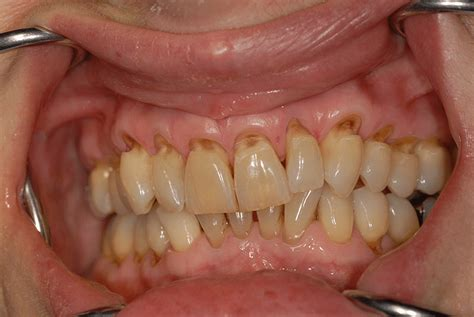 can natural teeth grow picture 17