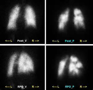 future techniques of facet joint imaging picture 10