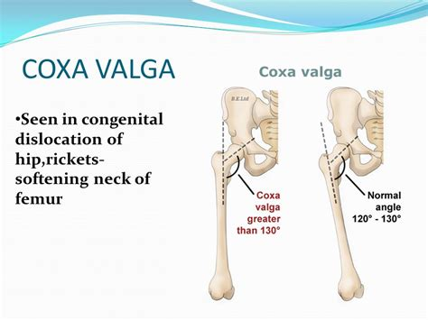 coxa vulga of hip joint picture 5