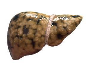 fatty deposits on the liver picture 2