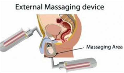 how to external prostate milking picture 3