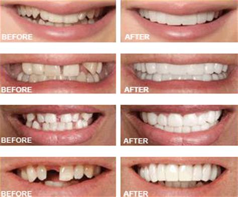 cheap snap on veneers for h picture 13