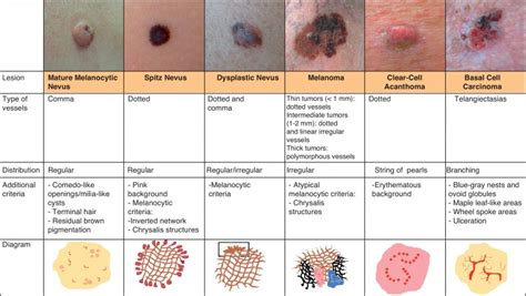 skin cancer warning signs picture 1
