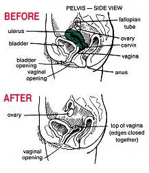 pre ageing after removal of uterus picture 2
