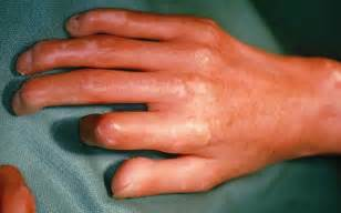 exacerbation scleroderma skin infection picture 11