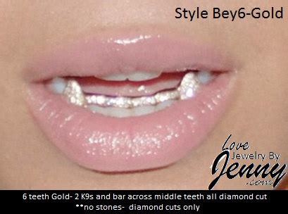 fronts and for teeth picture 5