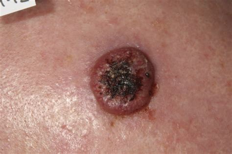 prognisis in squamous skin cell carcinoma picture 13