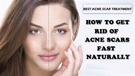 how to remove acne scars from years ago picture 1