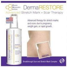 stretchmark removal spell permanently picture 10