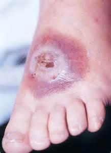 skin parasites 2014 picture 10