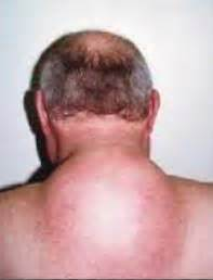 lump on back of neck due to weight picture 6