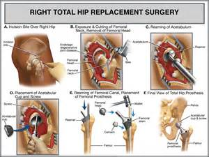 image of hip replacement joint picture 9